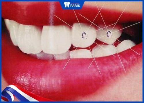 răng cẩn hột xoàn