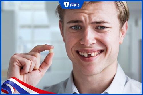 răng bị đen để lâu dễ khiến mất răng