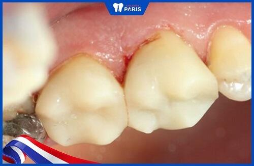 bọc răng cho bé bằng răng composite