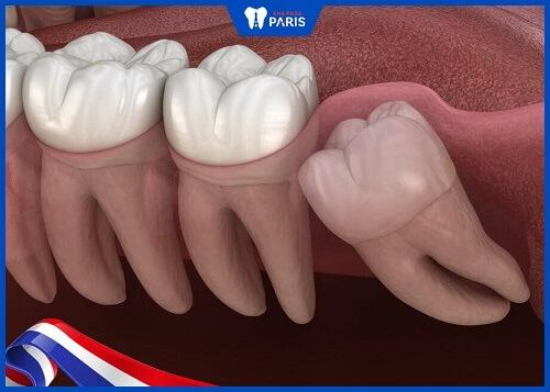 răng khôn bị sâu có trám được không