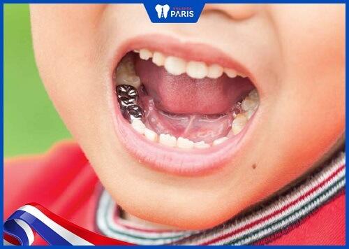 làm răng sứ cho trẻ bằng răng kim loại