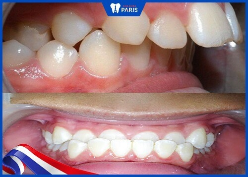 các kiểu răng cửa mọc lệch