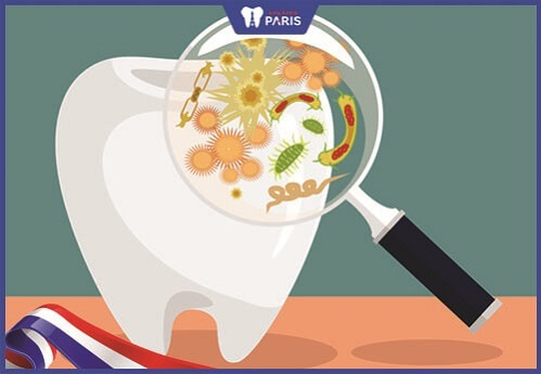 răng sứ bị cộm có thể gây bệnh lý răng miệng