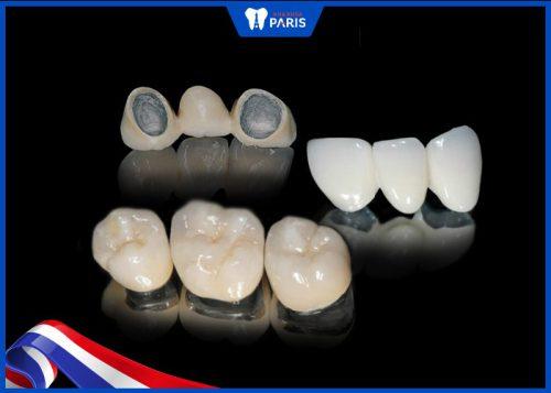 làm răng sứ bị viêm lợi có thể do chất liệu mão răng