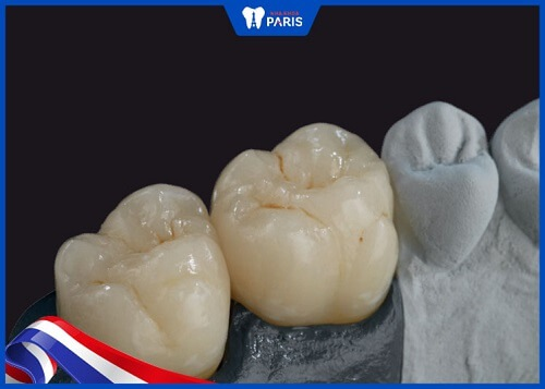 làm răng sứ ceramill hỗn hợp