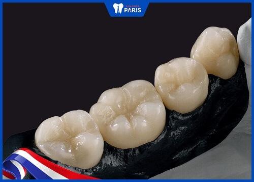 răng toàn sứ ceramill polymer