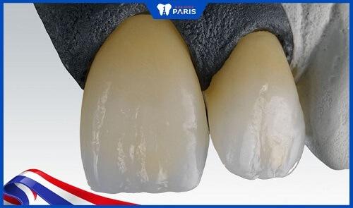 răng sứ ceramill là gì
