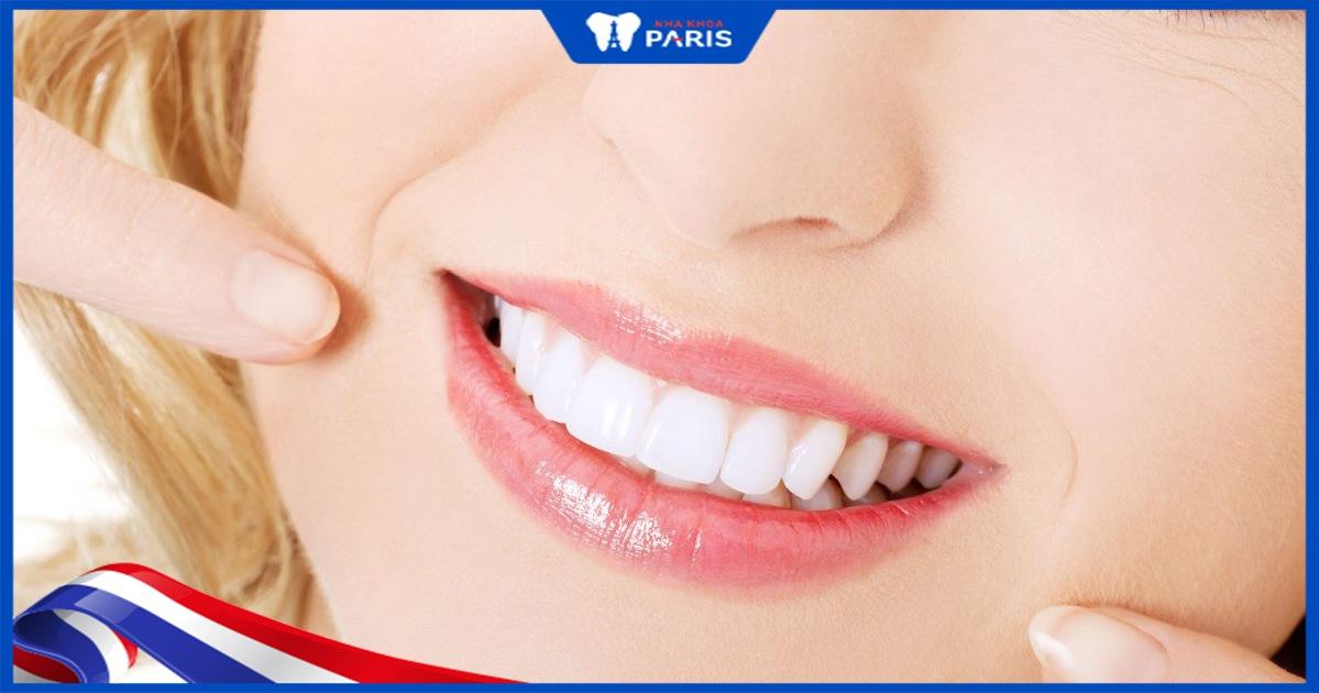 răng sứ emax có tốt không