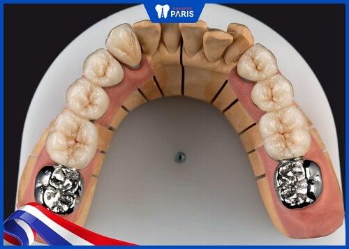 răng sứ ceramill có mấy loại