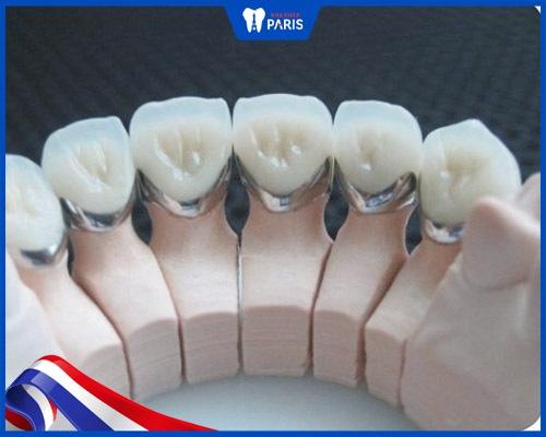 Răng kim loại có chi phí rẻ