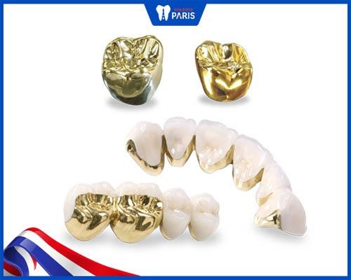 răng sứ quý kim