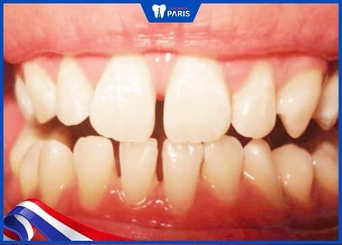 răng thưa gây bệnh lý răng miệng