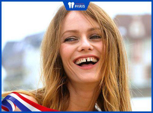 răng thưa gây ra ảnh hưởng gì