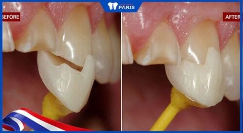 răng sứ veneer paltal