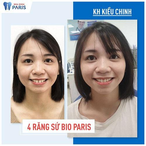 Kết quả bọc răng sứ khắc phục hô vẩu tại nha khoa Paris
