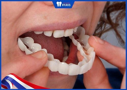 Răng Veneers tháo lắp