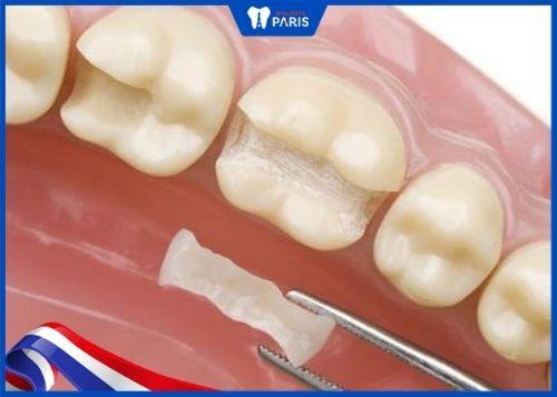 tác hại của việc trám răng thưa