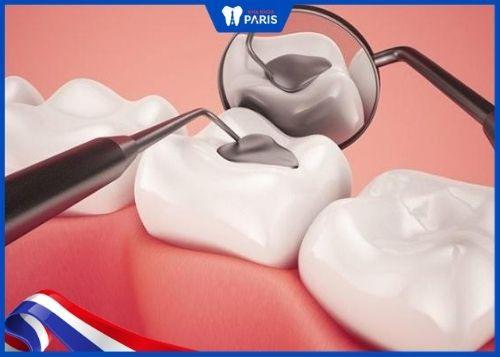 tác hại của việc trám răng