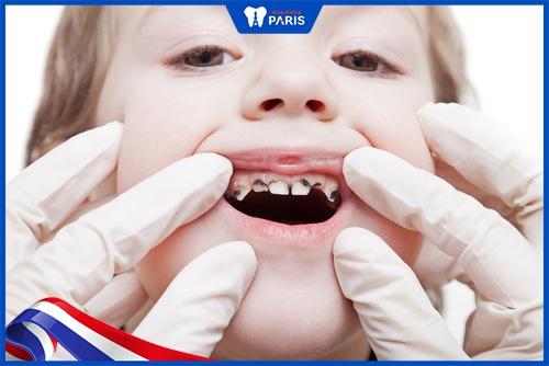 trám răng cho bé 1 tuổi