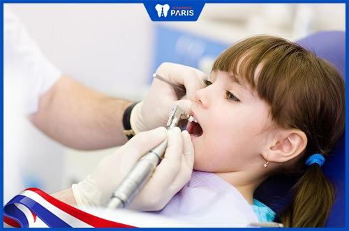 trám răng cho bé 3 tuổi