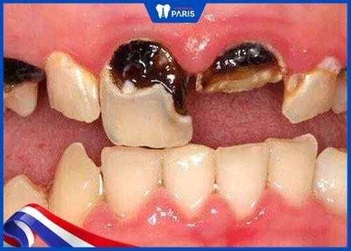 răng cửa bị sâu nặng