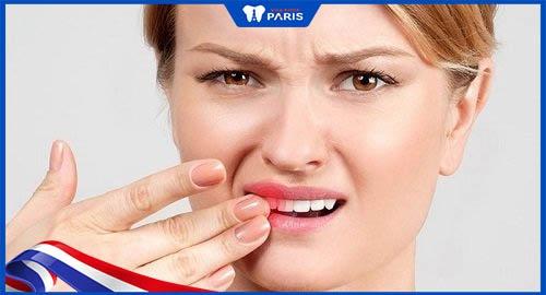 trám răng giá rẻ gây hỏng răng