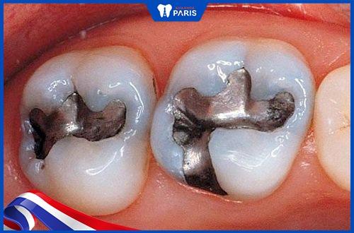 trám răng sâu bằng amalgam