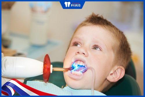 có nên trám răng sữa cho bé