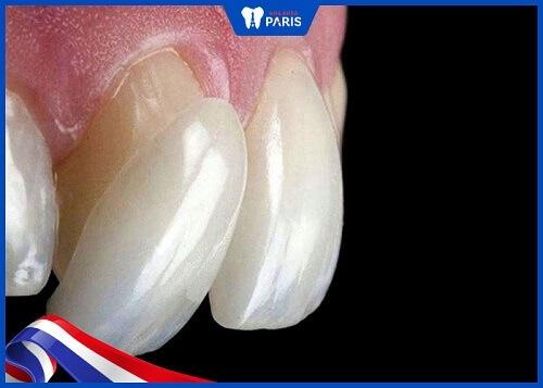 tác hại của dán răng sứ
