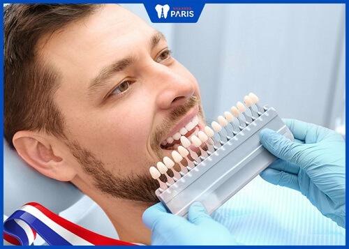 dán sứ veneer có ảnh hưởng đến răng thật