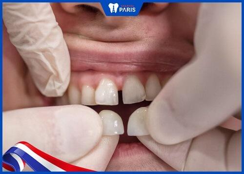 răng sứ veneer composite