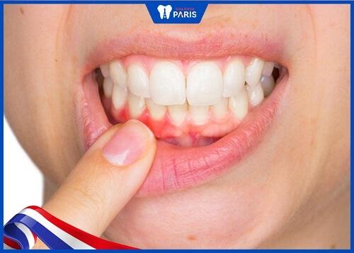 dấu hiệu cho biết răng sứ sắp hỏng