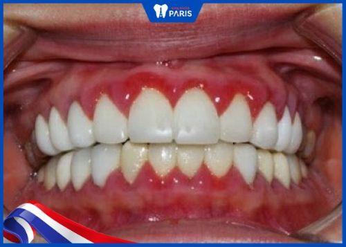 lợi bị sưng vì bọc răng sứ
