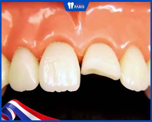 Răng sứ có nguy cơ bị vỡ