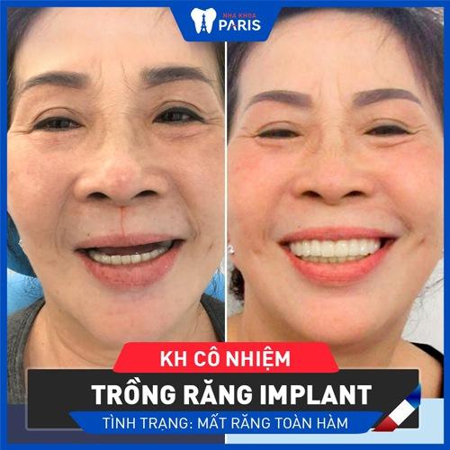 trồng răng implant có đau không khách hàng paris
