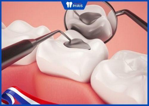 trám răng amalgam