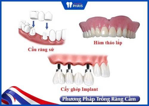 các phương pháp trồng răng cấm