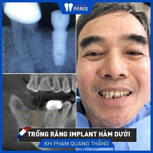 làm răng implant có đau không