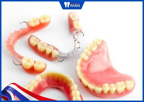 trồng răng hàm với hàm tháo lắp