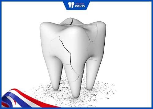trám răng cấm khi bị vỡ mẻ