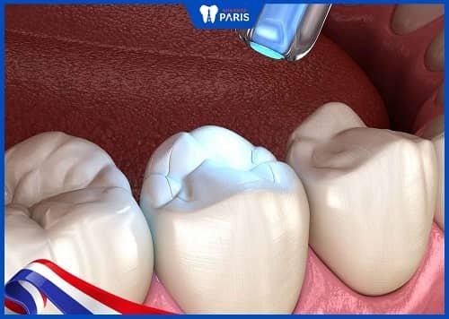 trám răng cấm