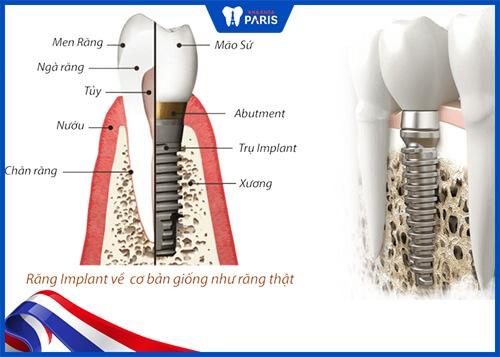 kinh nghiệm làm răng implant