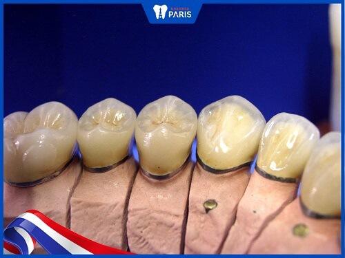 chân răng sứ bị hôi