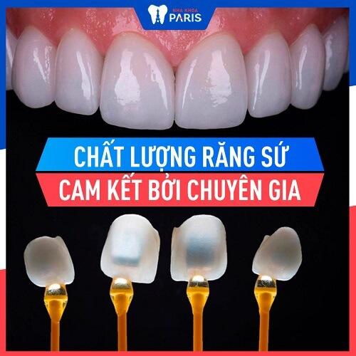 quá trình bọc răng sứ mất bao lâu