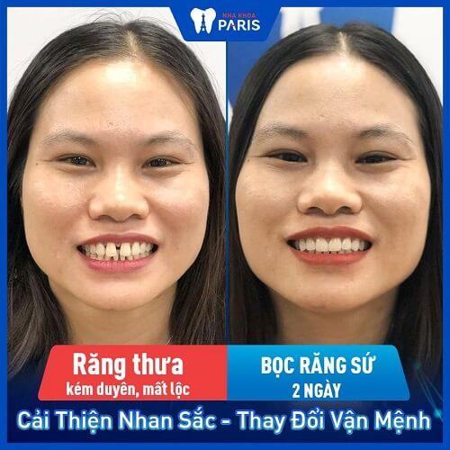 khách hàng gắn răng sứ venus
