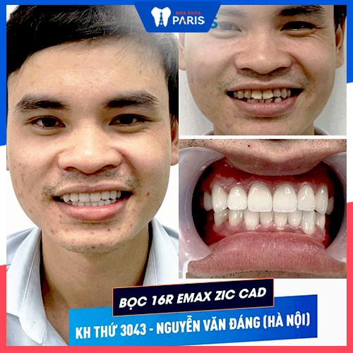 làm răng sứ trong bao lâu