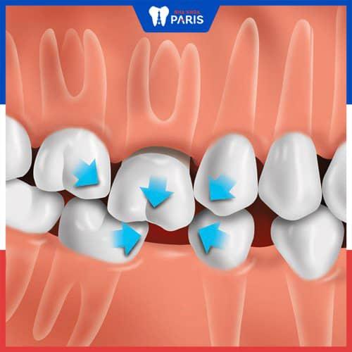 mất răng hàm gây xô lệch răng bên cạnh