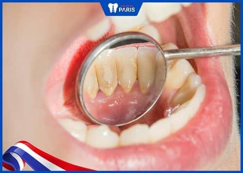 vôi răng làm mòn cổ chân răng