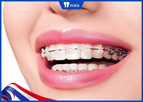 Tìm hiểu niềng răng có làm răng yếu răng