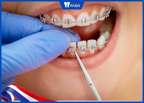 Niềng răng bị yếu có thể do tay nghề bác sĩ
